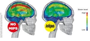 helmet_MIPS_Brain